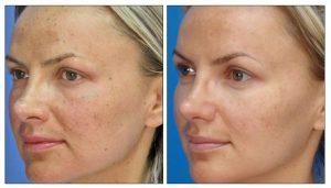 acne treatment glasgow